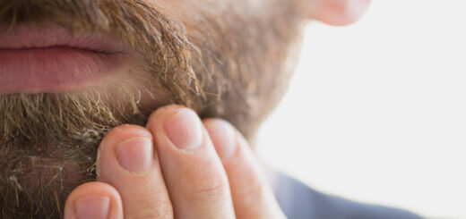 Deal with Dry Skin under Beard