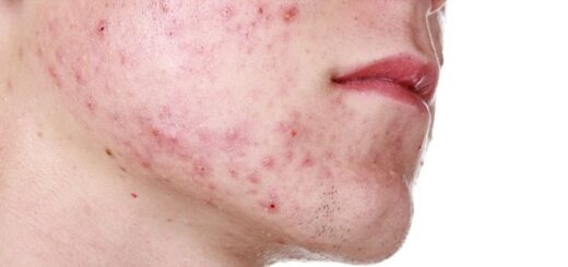a young man's face with acne and pimples
