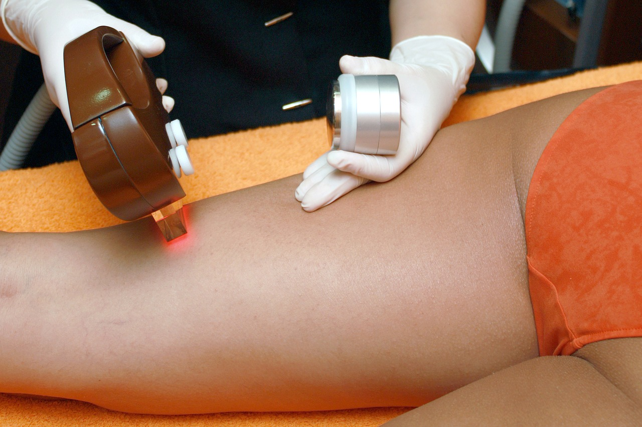 person having laser hair removal treatment for legs